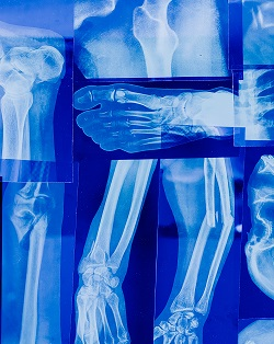 Poor Lifestyle Choices Double The Risk of Arthritis: Warn Doctors